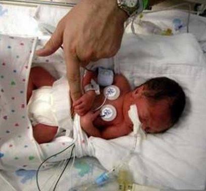 Beb-prematuro2.jpg