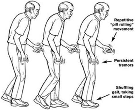 sintomas-parkinson_thumb.jpg