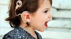 Las ventajas del uso de implantes cocleares