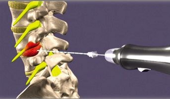 tratamiento-hernia-discal-con-ozono2.jpg