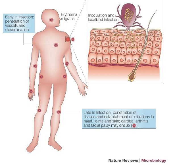 enfermedad de lyme 5