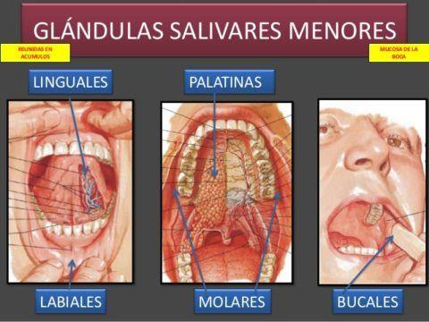 sialoadenitis-una-inflamacion-de-las-glandulas-salivales-glandulas-menores