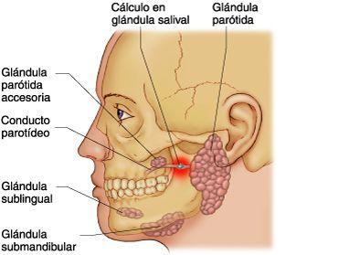 sialoadenitis-una-inflamacion-de-las-glandulas-salivales-glandulas-salivares