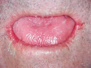 Paciente mayor, polimedicado, con fisuración labial y lingual, así como saliva viscosa y grumosa