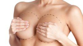 ¿Cuántos tipos de cirugía mamaria hay?