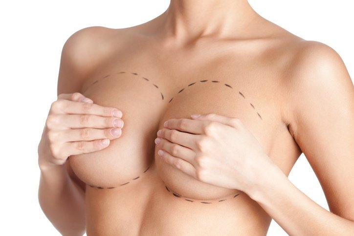 Cirugia mamaria elevacion pechos