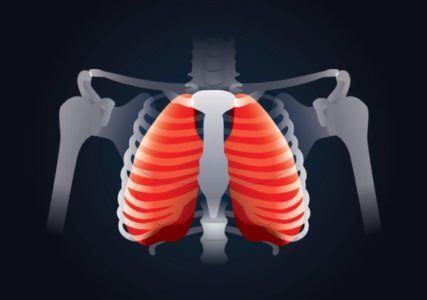 sindrome-tietze-columa-esqueleto-pulmones