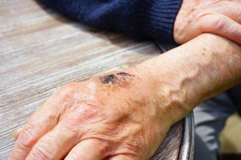 que-es-la-blastoestimulina-mano-anciana-ulcera